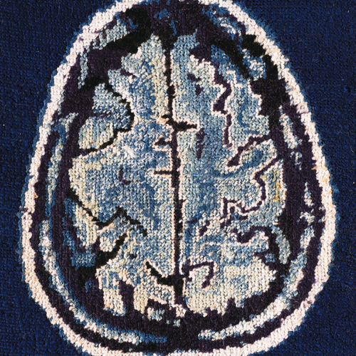 Ct image, tapestry